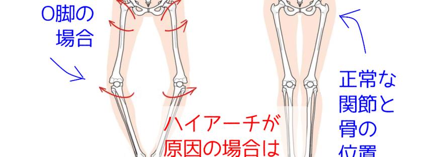 ハイアーチが原因の場合の内反膝