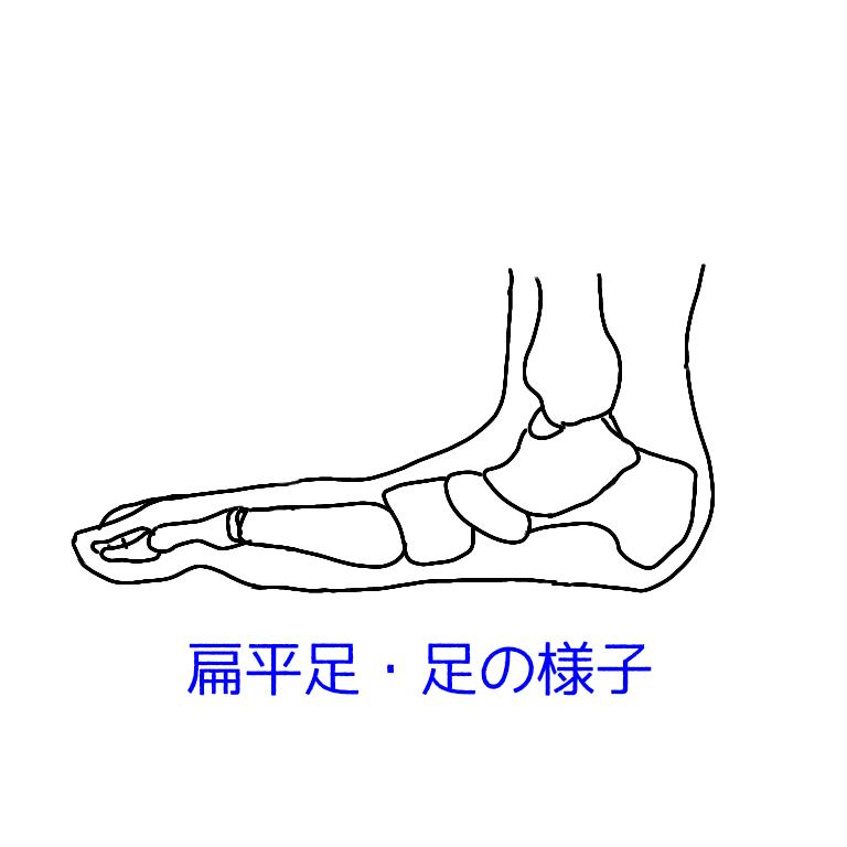 偏平足・足の様子