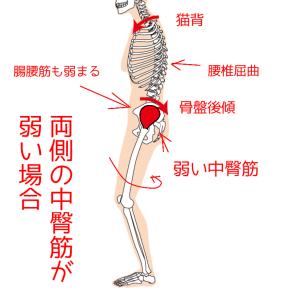 両側の中臀筋が弱い場合