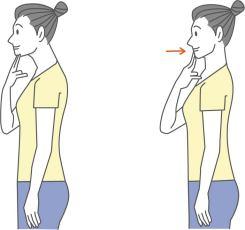 頸長筋のチェック